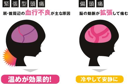 「緊張型頭痛」と「偏頭痛」イメージ図